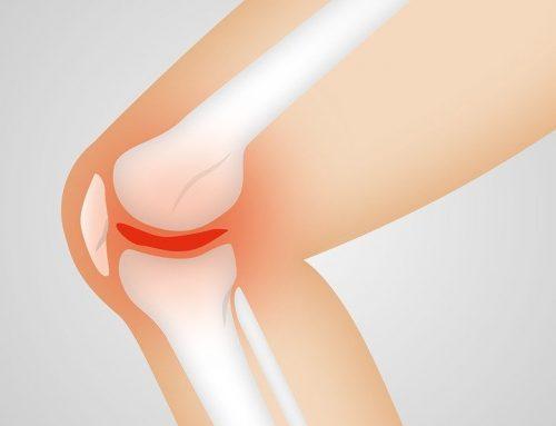 Ejercicios para aliviar el dolor de rodilla y fortalecer los músculos